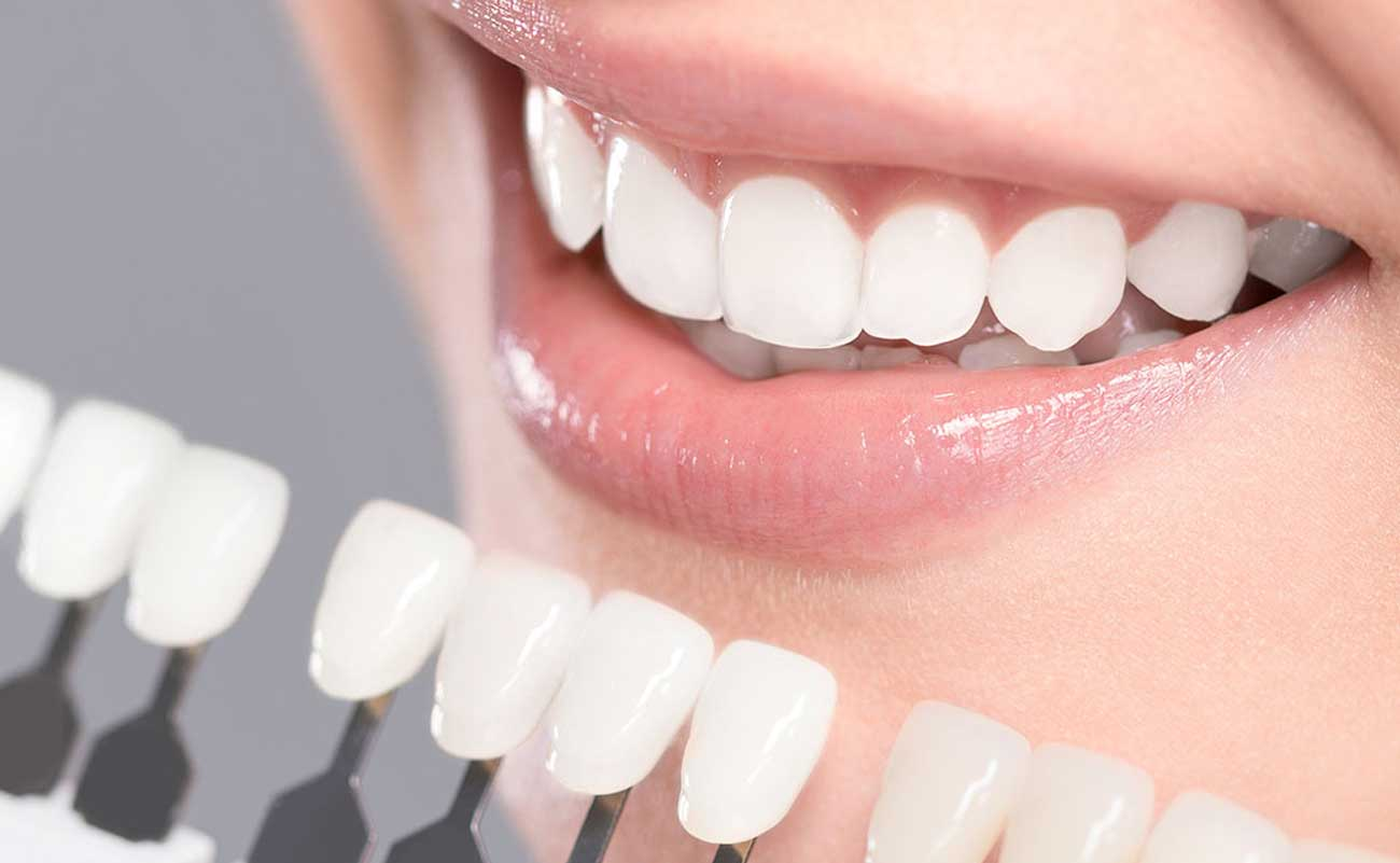 Great Tips That Will Help Whiten Your Teeth