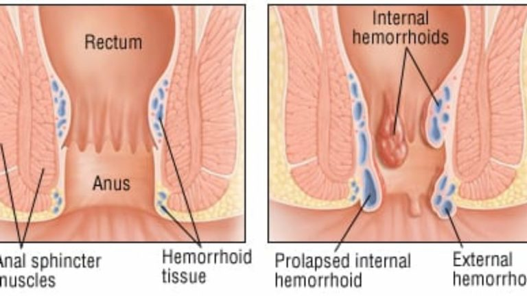 Find Relief From Your Hemorrhoids With These Tips