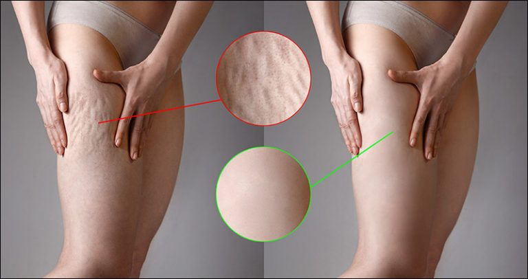 Don't Be Alone In Dealing With Cellulite